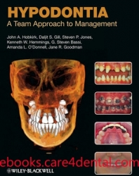 Hypodontia: A Team Approach to Management (pdf)