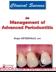 Clinical Success in Management of Advanced Periodontitis (.epub)