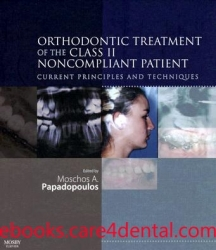 Orthodontic Treatment of the Class II Noncompliant Patient: Current Principles and Techniques (pdf)