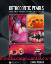 Orthodontic Pearls: A Selection of Practical Tips and Clinical Expertise (pdf)