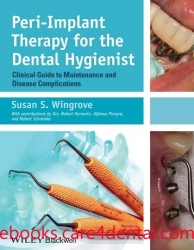 Peri-Implant Therapy for the Dental Hygienist: Clinical Guide to Maintenance and Disease Complications (pdf)