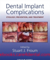 Dental Implant Complications Etiology, Prevention and Treatment (pdf)