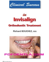 Clinical Success in Invisalign Orthodontic Treatment (pdf)