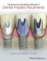 Clinical and Laboratory Manual of Dental Implant Abutments (pdf)