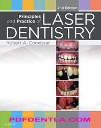 Principles and Practice of Laser Dentistry - Second Edition (pdf)
