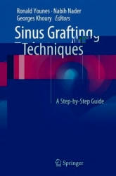 Sinus Grafting Techniques: A Step-by-Step Guide (PDF)